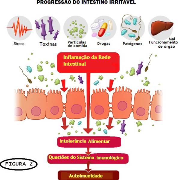 SII Sindrome do Intestino ou colo Irritado