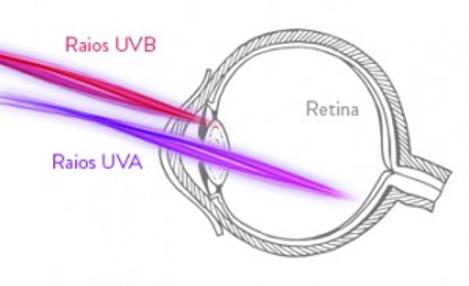 Dores nos olhos por uso de ring light com raios uv e luz azul violeta